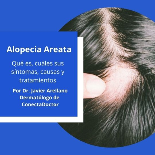 Alopecia Areata: Qué es, cuáles sus síntomas, causas y tratamientos.